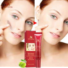 3pcs MeiYanQiong 15ml Acne Scar Stretch Mark Repair Cream Treatment Blackhead Whitening Cream Skin Repair Face Cream TSLM2-in Facial Self Tanners & Bronzers from Beauty & Health on Aliexpress.com | Alibaba Group