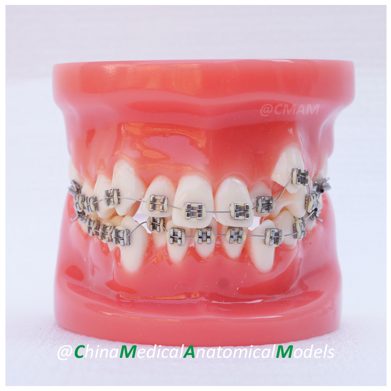 13031 DH204-1 Dentist Training Oral Dental Ortho Metal Model, China Medical Anatomical Model dh202 2 dentist education oral dental ortho metal and ceramic model china medical anatomical model