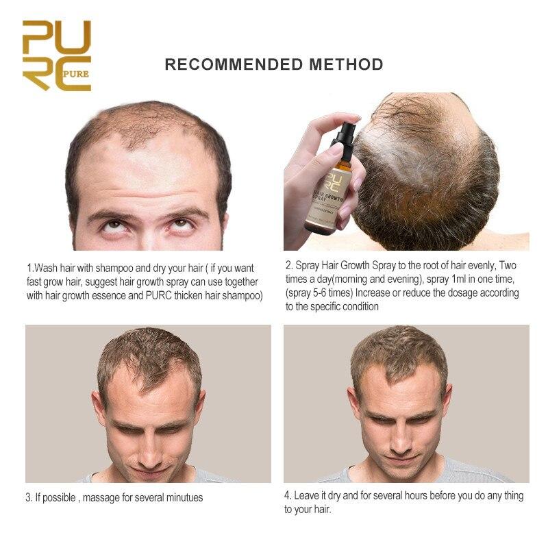 PURC Hair Loss Treatment Ginseng And Ginger Hair Growth Spray Fast Hair Growth Hair Care Product 30ml