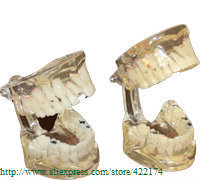 Baby pathologies model dental tooth teeth anatomical anatomy model odontologia