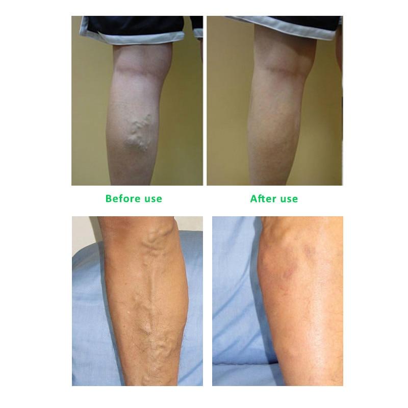 10pcs / lot åreknuder 38 Fule Vasculitis patches vasculitis spray - Sundhedspleje - Foto 4