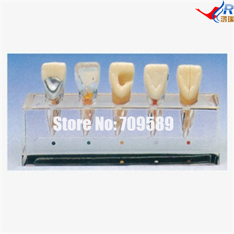 Clinical Model of Endodontics, Dental Care Model духовой шкаф bosch hba23rn61