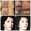 New Powerful Remove Scar Patch + Cream Remove Acne Spots Remove Striae Gravidarum Pigmentation Corrector Anti-Aging Moisturizing