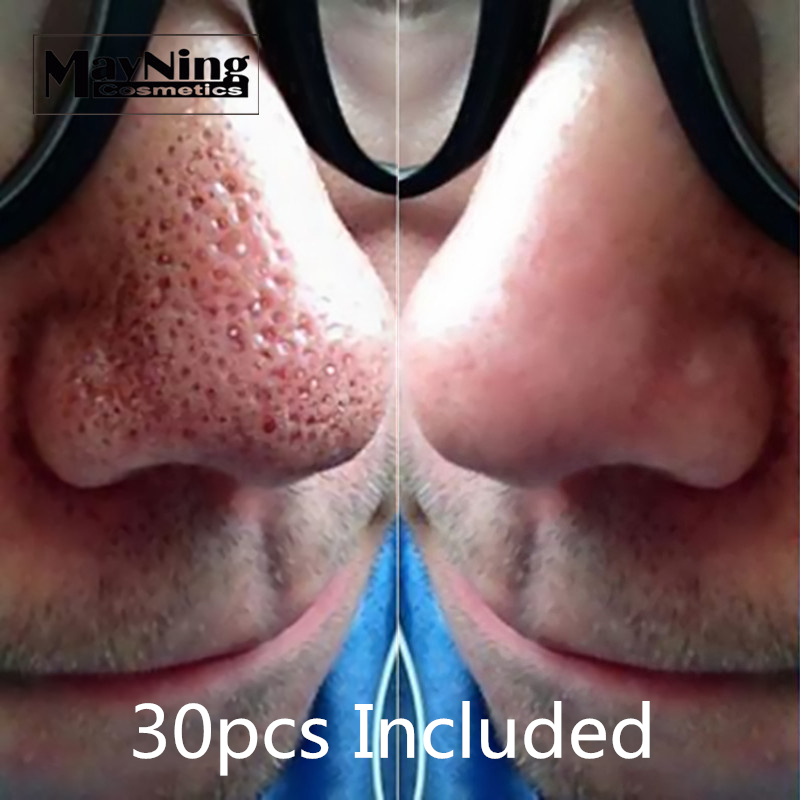 Nose Strips 30pcs Remove Blackhead Black Mask Get Rid Of Black Dots On Noses Jaws Forehead Minimize Pores Cleanser Easily