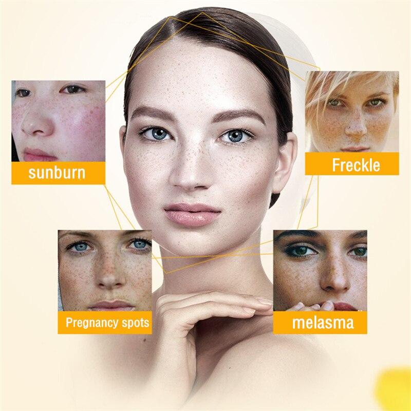 Купить с кэшбэком Dimollaure Retinol whitening cream Vitamin Remove Freckle melasma pigment Melanin sunburn Pregnancy spots Acne scars brown Spots