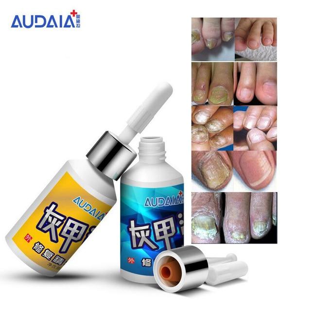 2 шт Масло отбеливающее для лечение грибка на руках и ногах