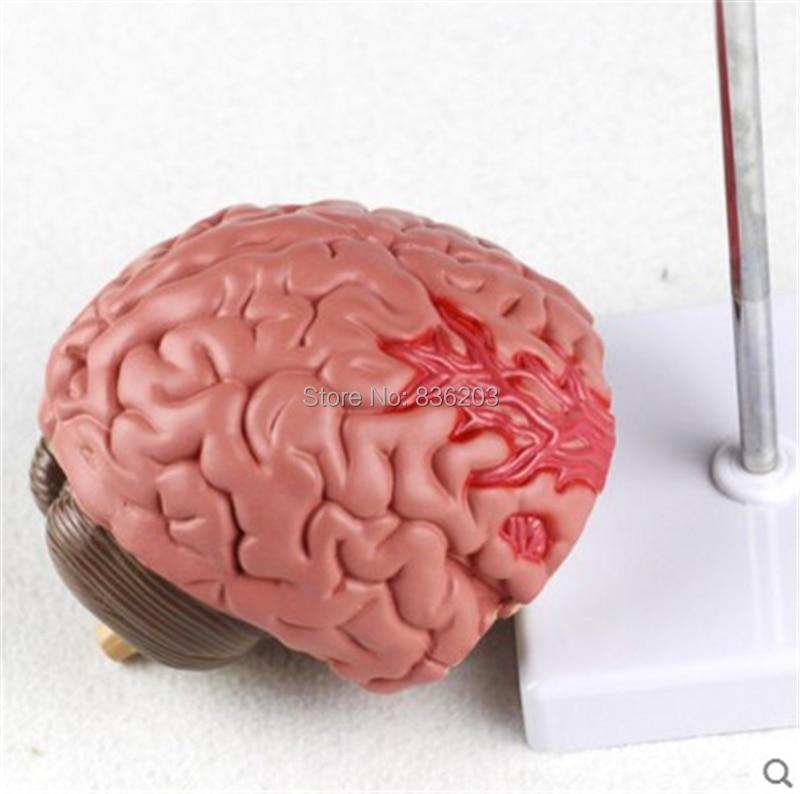 Buy brain anatomy study and get free shipping on AliExpress.com