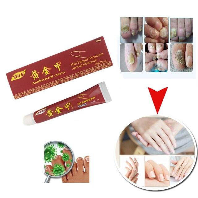 DUS Dropshipping Nail Fungus Treatment Ointment Treatment Toe Nail ...