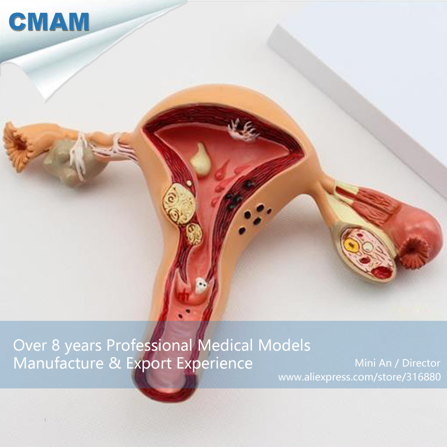 CMAM-ANATOMY03 Pathological Female Uterus and Ovary Medical Anatomy Model,Medical Science Educational Teaching Anatomical Models iso economic anatomical uterus model natural uterus model