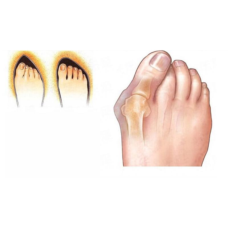Toe Separators2