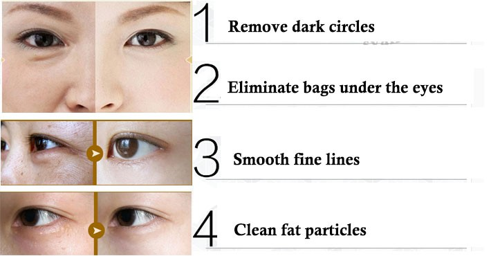 100% Natural Eyes Essential Oil for Relieve Tired Eyes and Dark Circles Eye Care Massage Oil 10ml 11