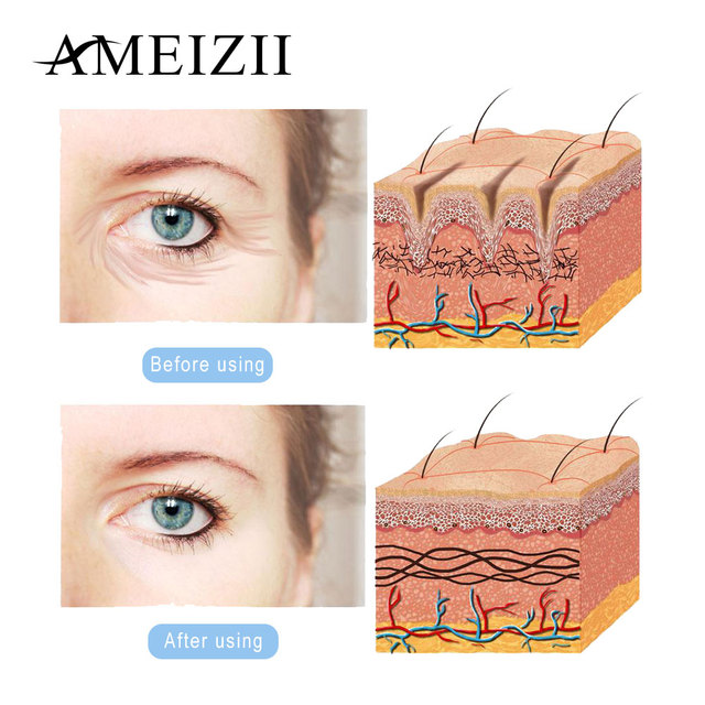 AMEIZII Anti Wrinkle Cream Hyaluronic Acid Anti Aging Moisturizer Whitening Face Cream Skin Care Face Lift Day and Night Cream