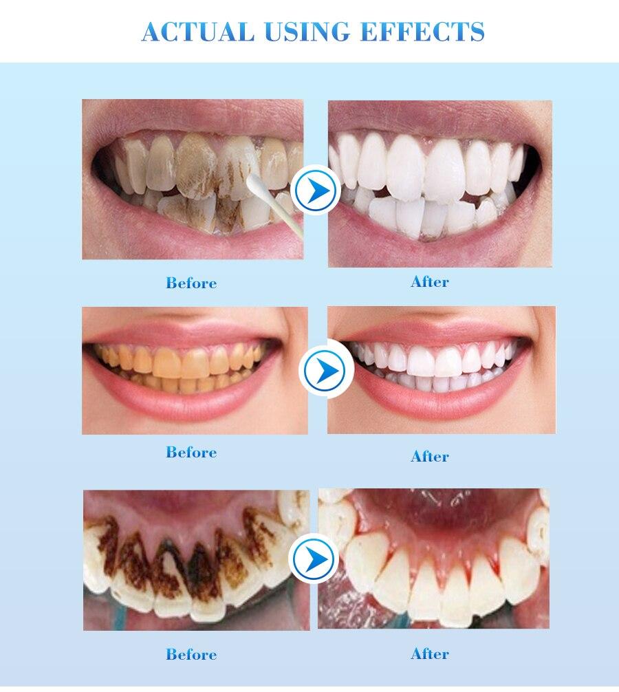 EFERO отбеливающая Сыворотка для зубов гель для гигиены полости рта эффективное удаление пятен зубной налет Чистящая эссенция для зубов Уход за зубами зубная паста