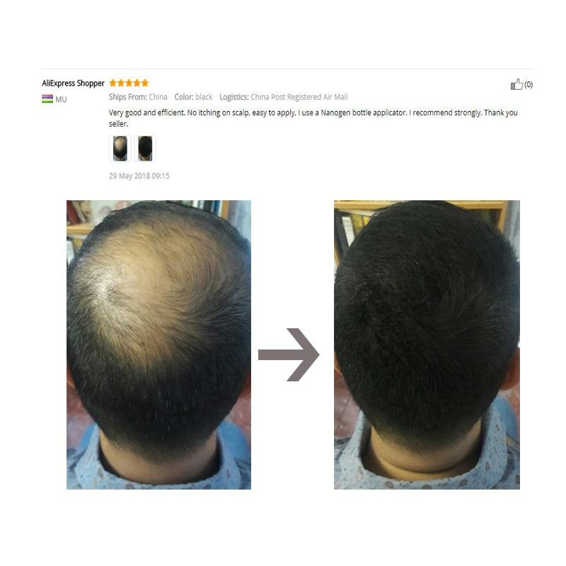 Sevich Regrowth Oil Keratin Thickening Hair Building Al instante - Cuidado del cabello y estilo - foto 4