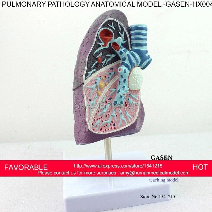 Pathology Lung Model Department Of Internal Medicine Model