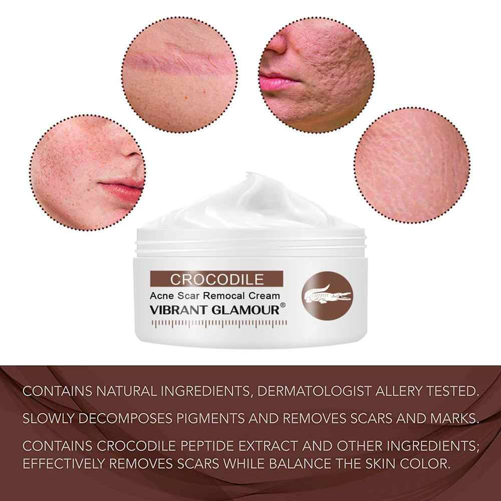 Scar Removal Cream For Old Scars Stretch Mark Removal Cream For Men And Women Face Cream To Repair Cream Burns And