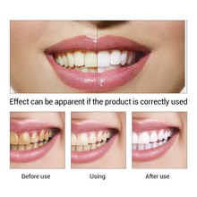 LANBENA teeth whitening essence powder oral hygiene cleaning serums removes dental