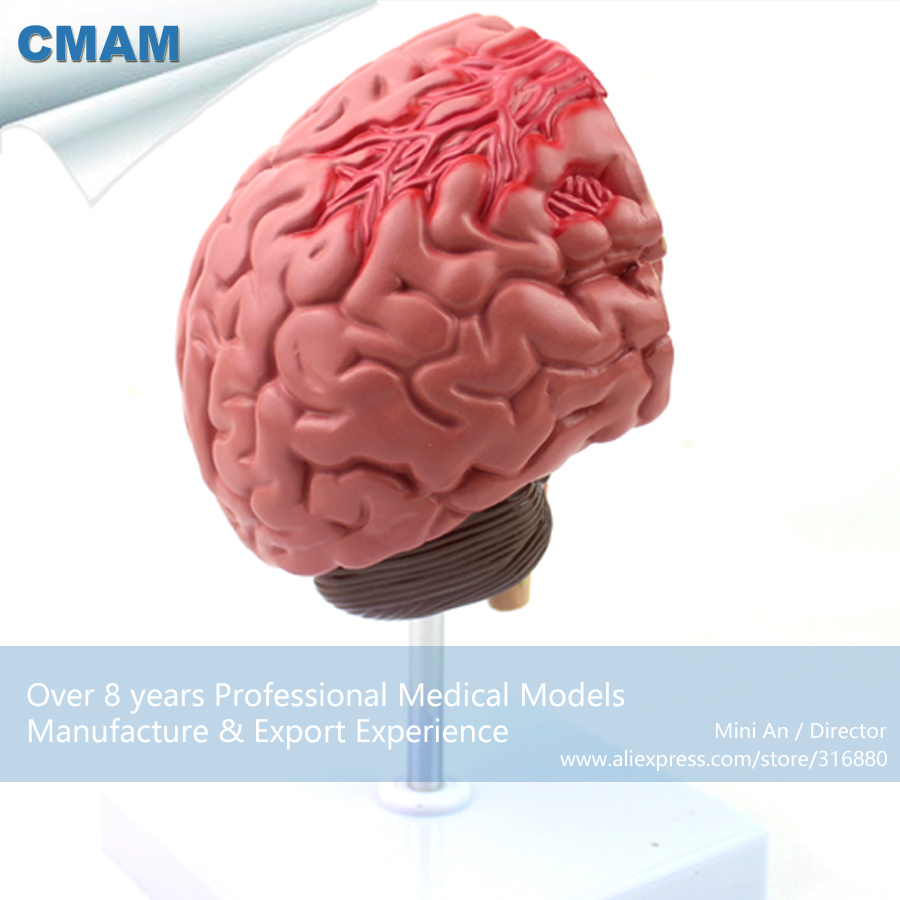 12408 CMAM-BRAIN10 Human Anatomy Disease of the Brain Teach Model,  Medical Science Educational Teaching Anatomical Models 12400 cmam brain03 human half head cranial and autonomic nerves anatomy medical science educational teaching anatomical models