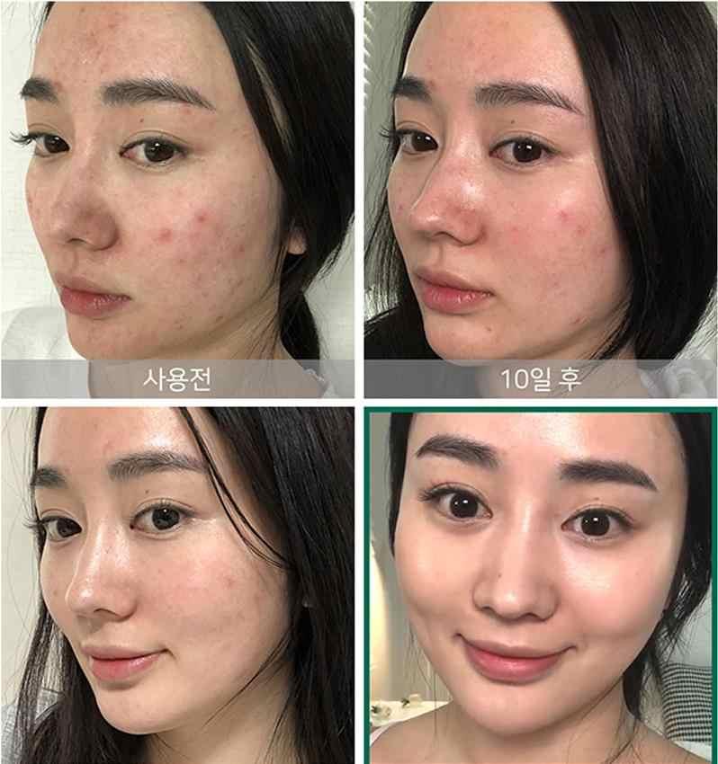 ALGUNS POR MI AHA, BHA, PHA 30 Dias Milagre Toner 150 ml Soro Rosto Removedor de Cravo Tratamento da Acne Cicatriz Essência Facial SOMEBYMI