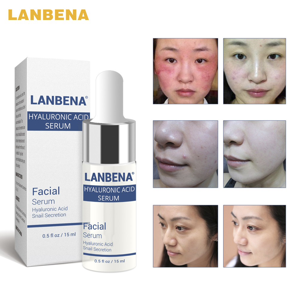 LANBENA Hyaluronic Acid Serum Snail Essence Face Cream Moisturizing Acne Treatment Skin Care Repair Whitening Anti-Aning Winkles