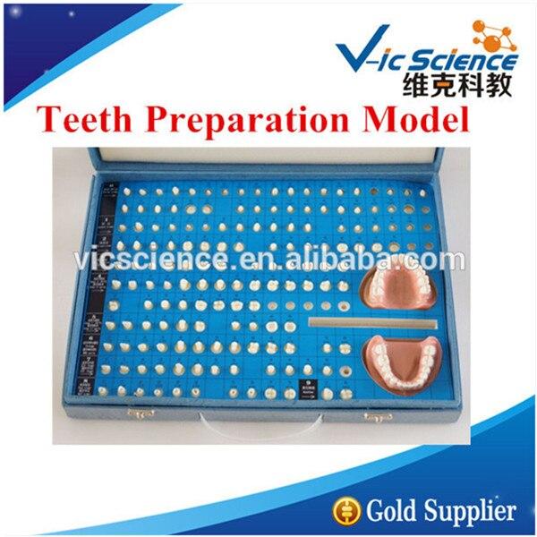 Teeth Preparation Model/Cavity Preparation Model/Prosthodontics Model prosthodontics practice dentistry prepared teeth system preparation of gingival simulation teeth oral teaching modelgasen kq004