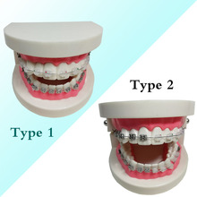 1 piece Dental Orthodontic Teeth Model Metal/Ceramic Brackets Contrast Adelomorphic Ligature Tie Buccal Tube NiTi Archwire 2016 dental orthodontic study teeth model with metal brackets simulation teeth model teeth