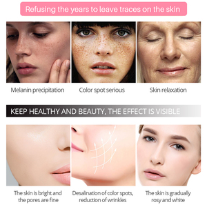 Image 3 - EFERO פנים קרם הלבנת נמשים להסיר אנטי גיל כתמים שחורים עור טיפול כהה כתמי Melasma ברק חלק פנים סרום