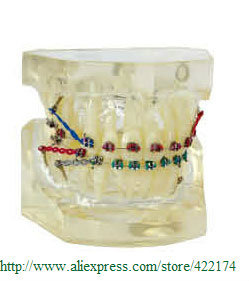 Free Shipping Orthodontics treatment model odontologia dental teaching tooth teeth dentist dentistry  Tyodont Model 2016 dental orthodontics typodont teeth model half metal half ceramic brace typodont with arch wire