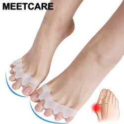 5 zehen Fuß Brace Hallux Valgus Korrektur Überlappenden Hammer Separator Korrektur Fuß Schiene Knochen Orthesen Gerät Füße Pflege