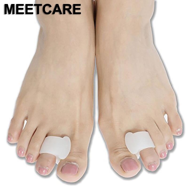 Sebs Forefoot Pad Childrens Hallux Valgus Orthosis Big Toe Valgus Big Foot Bone Thumb Valgus Correction Orthopedic Insoles Distinctive For Its Traditional Properties Insoles