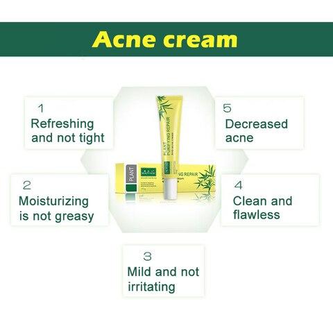 20g Acne Scar Removal Cream Face Skin Care Spots Blemish Marks Treatment Face Care Whitening@ME88 Karachi