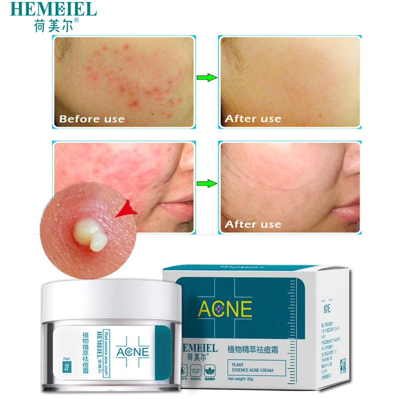 HEMEIEL Herbal Anti-Acne Cream Oily Skin Acne Stains Moisturizing Acne Treatment Face Cream Care Acne Scar Remove BlackheadHEMEIEL Herbal Anti-Acne Cream Oily Skin Acne Stains Moisturizing Acne Treatment Face Cream Care Acne Scar Remove Blackhead