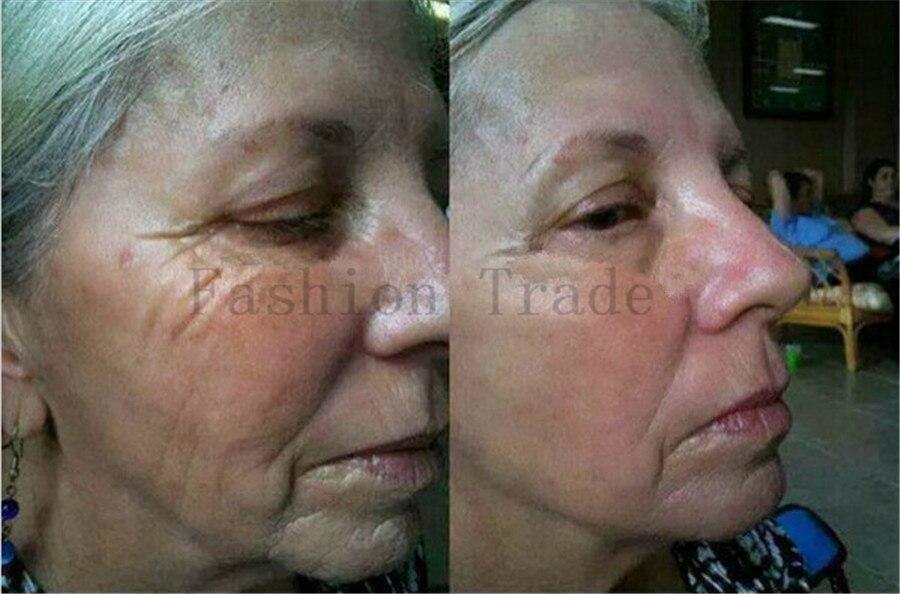 5pcs 5X10ml Powerful Anti-Aging Essence Anti Wrinkle Cream Collagen Face Lift Serum Skin Care Product Argireline Liquid