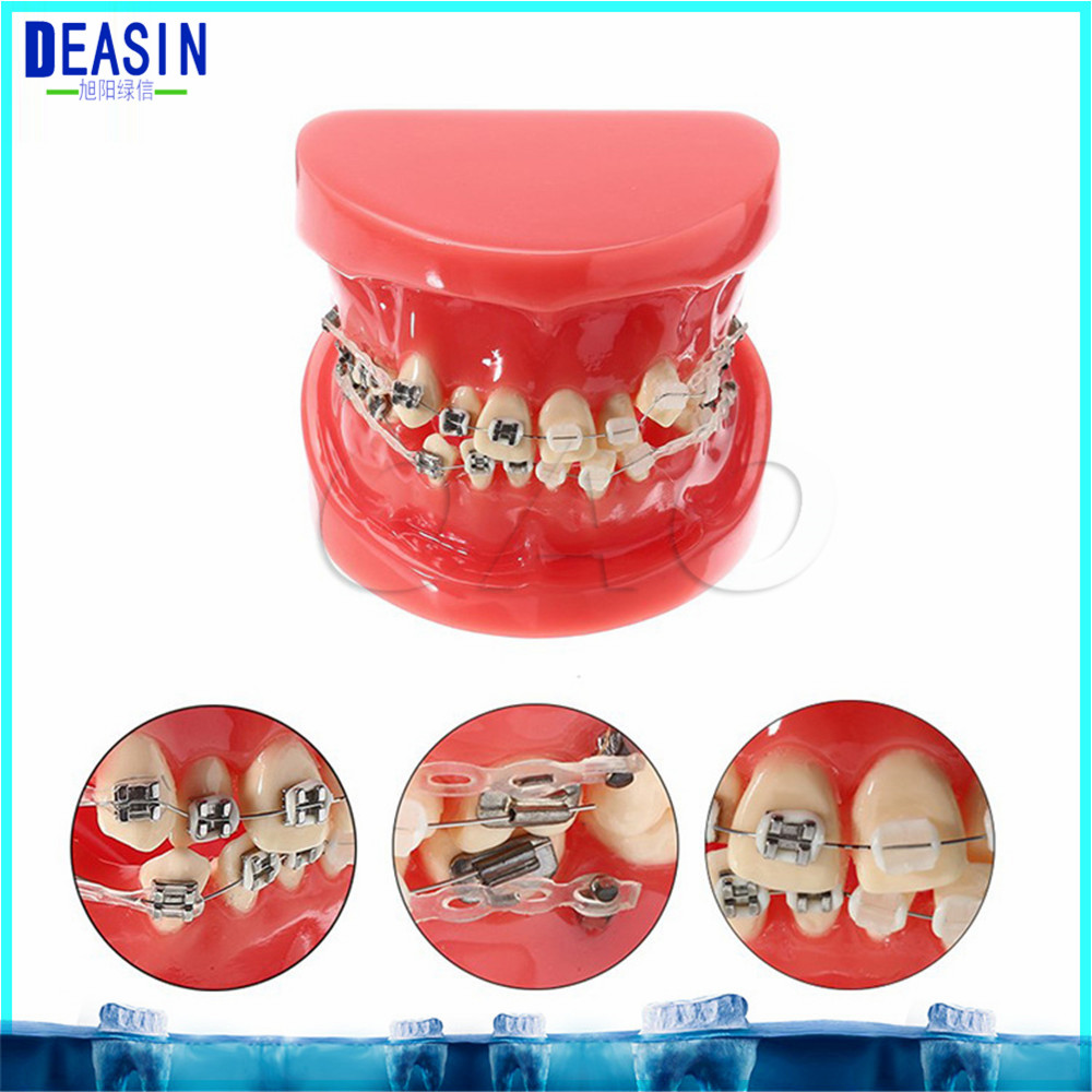 2018 Orthodontists model With metal brackets Irregular tooth Ortho Dontists Model with Metal Brackets Irregular Teeth orthodontists model with metal
