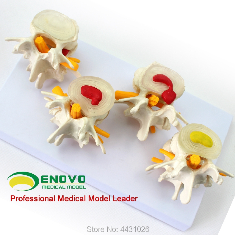 ENOVO A model of bone pain in the intervertebral disc of the lumbar spine