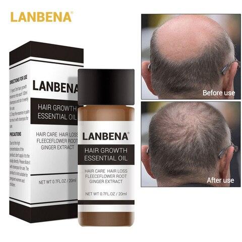 LANBENA Hair Care Ginger Extract Hair Growth Essential Oil Repair Strengthen Thicken Hair Prevent Hair Loss Nourish Awaken 20ml Lahore