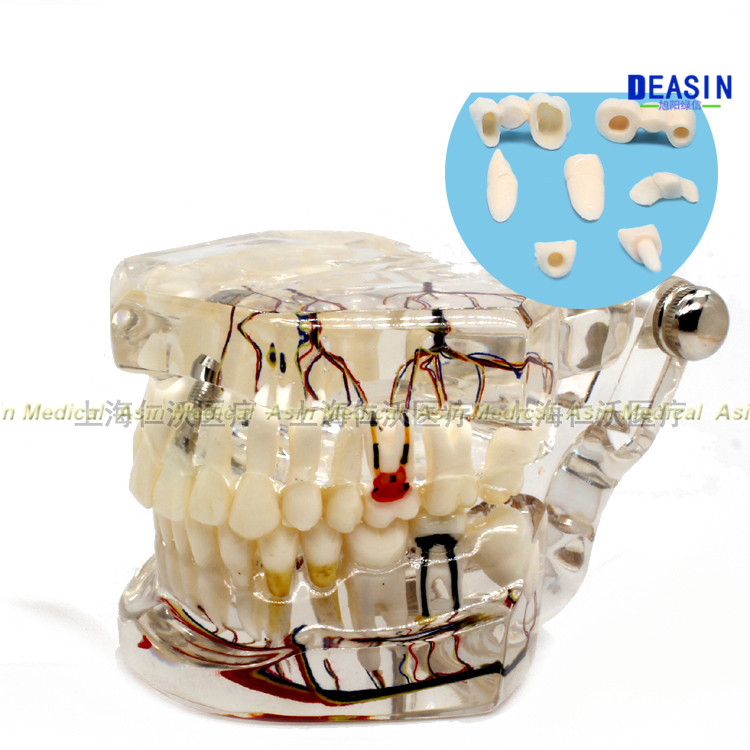 2018 new arrival dental teeth model Transparent pathological implant nerve model Repair model Teaching demonstration model soarday children primary teeth alternating transparent model dental root clearly displayed dentist patient communication