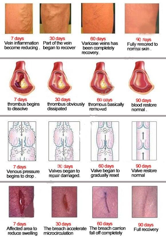 pigmentați pete în varicoză)