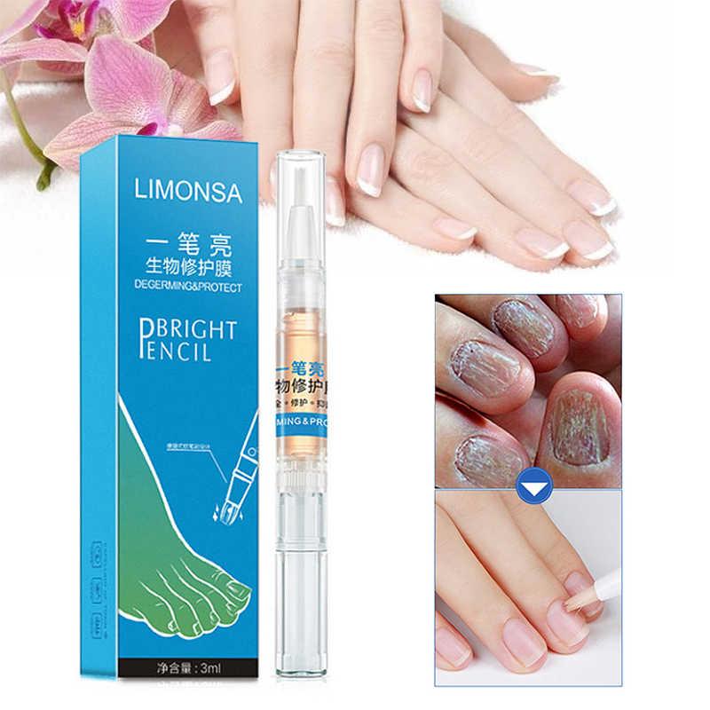 1 adet Tırnak Mantar Tedavisi Kalem Anti Mantar Enfeksiyonu Biyolojik Onarım Çözümü Besleyici Yağ 3ml Geri Yükler Sağlıklı Ayak Tırnaklarını TS1