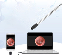 Отоларингологии эндоскопа oralexam инструмент шейки матки электронный кольпоскоп мобильного телефона speculum высокой четкости камеры