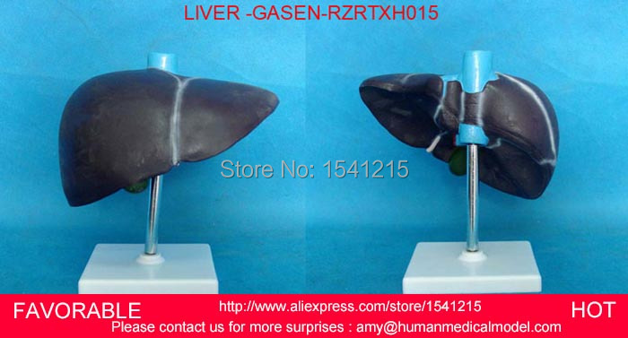 HUMAN LIVER MODEL ANATOMICAL MODEL MEDICAL SCIENCE TEACHING SUPPLIES,HUMAN LIVER MODEL,VIVID LIVER MEDICAL MODEL-GASEN-RZRTXH015 vivid anatomical skin block model enlarged skin section model human skin model