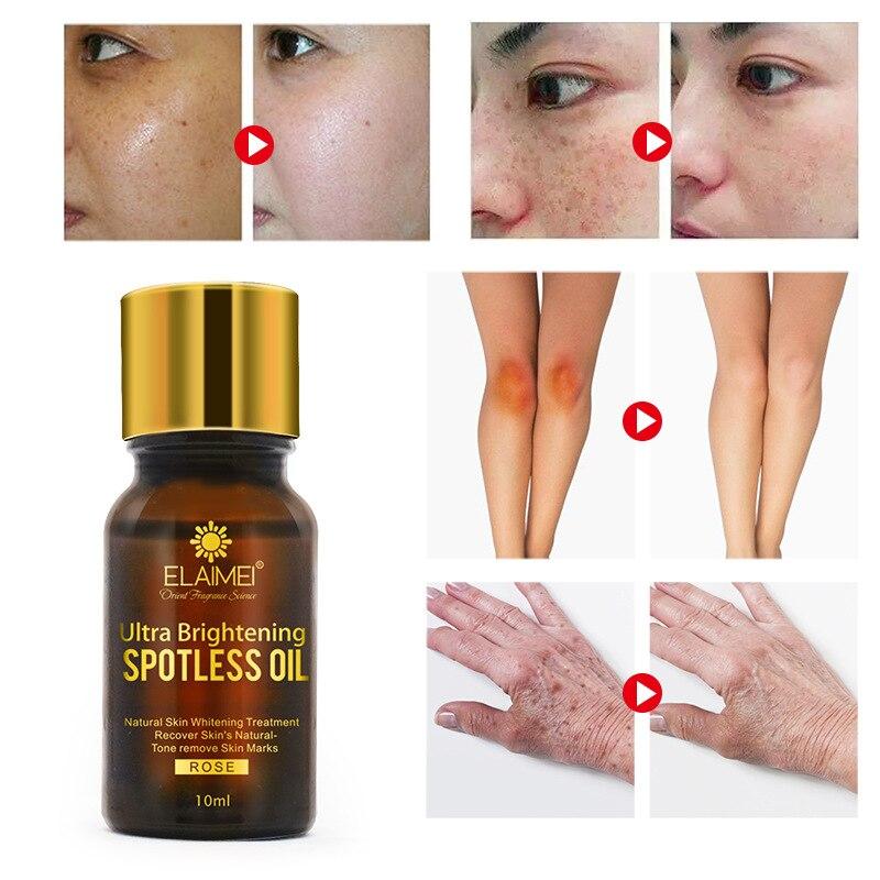 Acne Scar Removal Essential Oil Skin Repair Cream Acne Spot Acne Treatment Blackhead Whitening Cream Elastic Essential Oil TSLM1