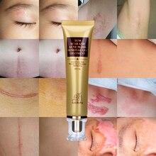 LANBENA Scar Removal Cream Ginseng Extract Skin Care Repair Spots Acne Treatment Stretch Marks facial blackhead Bleaching Cream