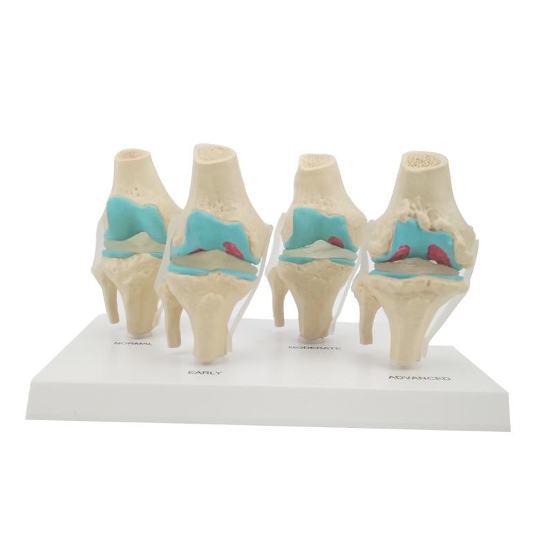 Human Anatomical Model 4 Stages Pathological Change Knee Joint Model
