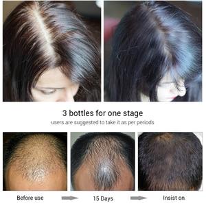Image 5 - EFERO esencia para el crecimiento del cabello, tratamiento para prevenir la pérdida de cabello, suero para el crecimiento del cabello denso y suave, cuidado de la salud, 20ml