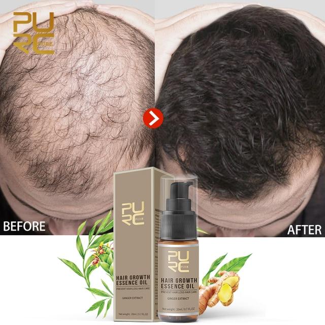 PURC מכירה לוהטת מהיר שיער צמיחת מהות שמן שיער אובדן טיפול לעזור עבור שיער צמיחת שיער טיפול 20 ml