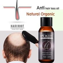 Mokeru 1pc 30ml Natural organic anti hair loss products baldness treatment hair