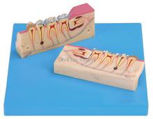 Dissected Model of Teeth Tissue,Teeth Organizational Model