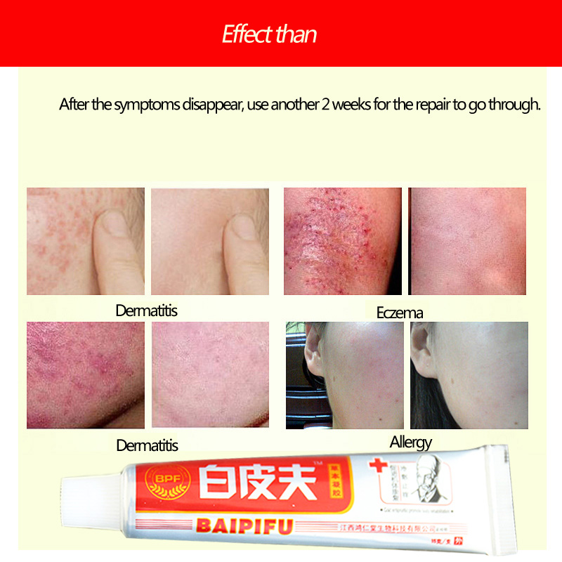 Baipifu Original Body Cream good for skin health ease hot itchy pain Without Retail Box Hot Selling