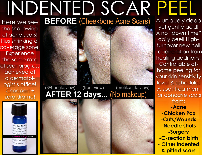 皮膚の痂皮を癒す方法